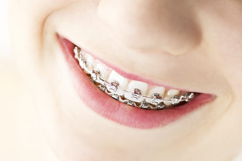 orthodontic treatment is necessary for many children, and JK Orthodontics helps parents better realize the common warning signs